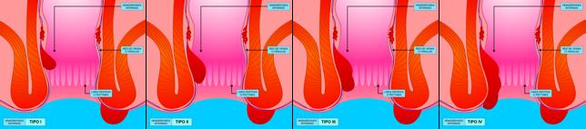 Almorranas o Hemorroides