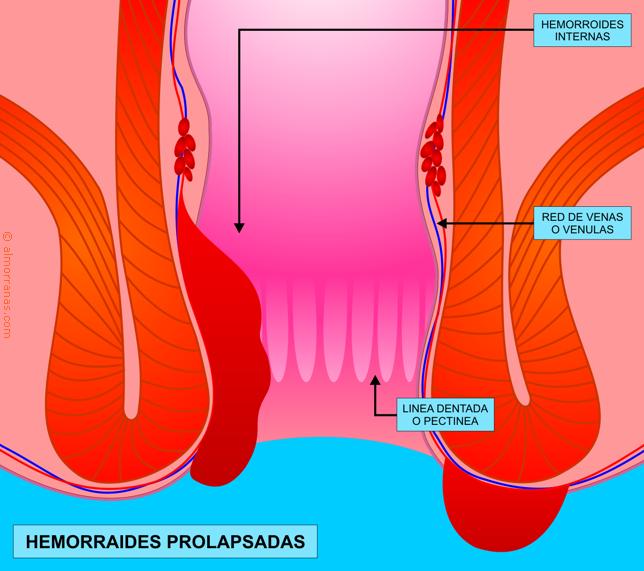 hemorroide externa: